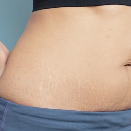 Stretch Mark Removal